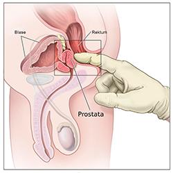 Alle Infos: Cialis zur Behandlung des benignen Prostatasyndroms